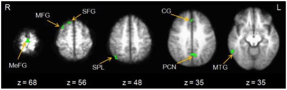 los escáneres cerebrales se activan cuando se presentan con recompensas inmediatas / descuento hiperbólico